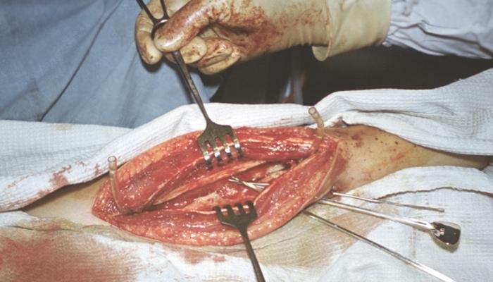 Как лечит дисбактериоз влагалища