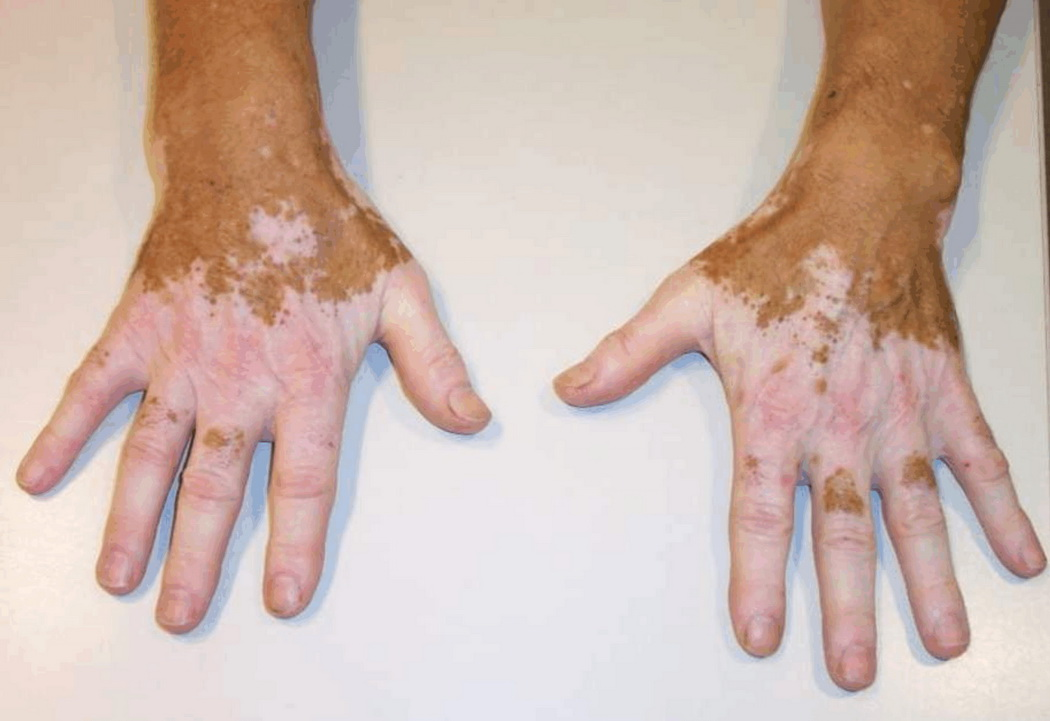 артрит дистального межфалангового сустава