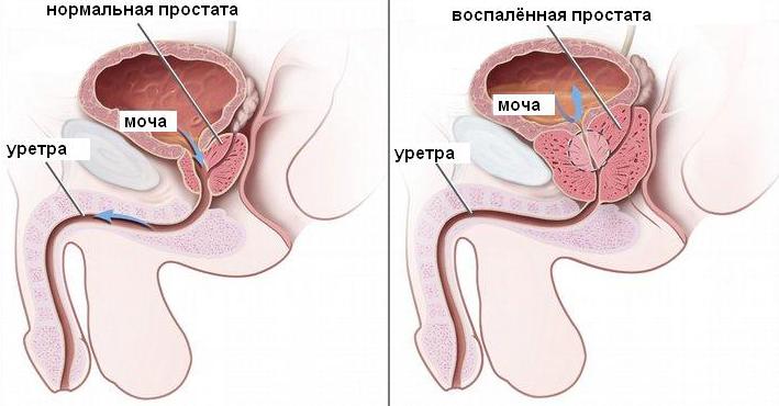 Лекарства против простатита у мужчин