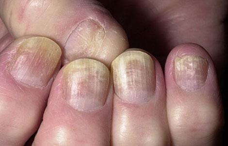Волны на ногтях рук фото