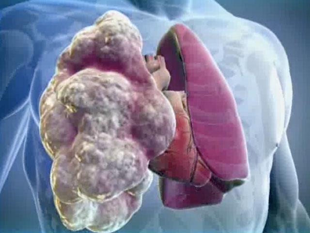 признаки болезни легких
