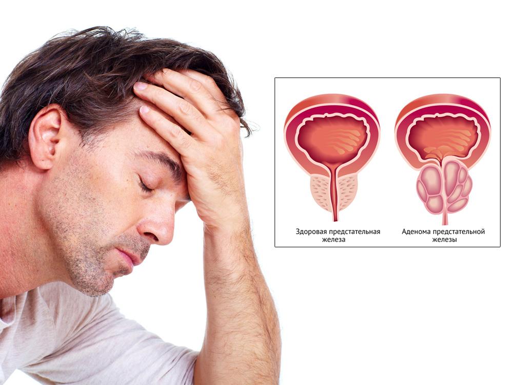 Как влияет секс на рак простаты