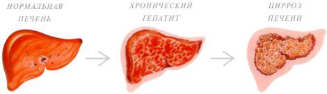 Воспаление печени симптомы лечение в домашних условиях
