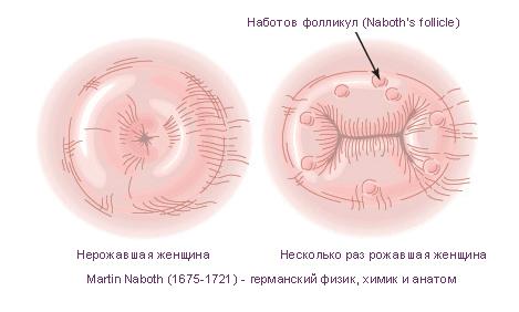 Матка рожавшей и нерожавшей женщины