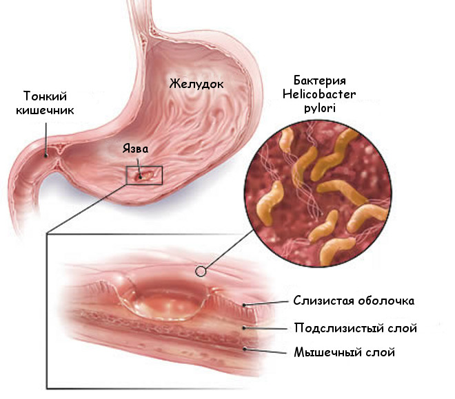 Пенетрирующая язва желудка и двенадцатиперстной кишки фото